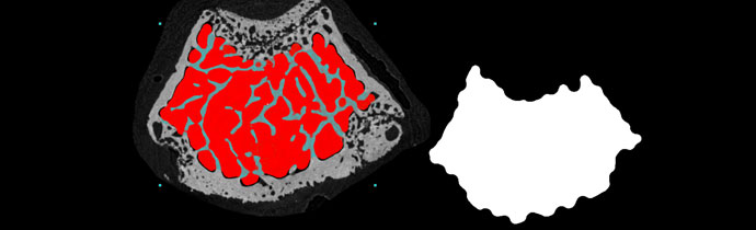 Bone morphometry with micro-CT