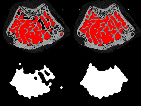 Micro-CT scan of bone