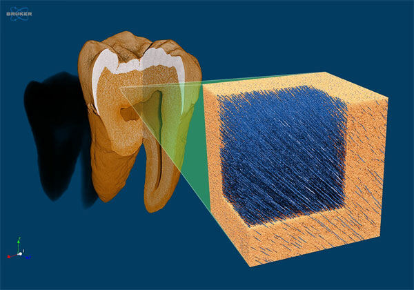Micro-CT Scan of a Tooth