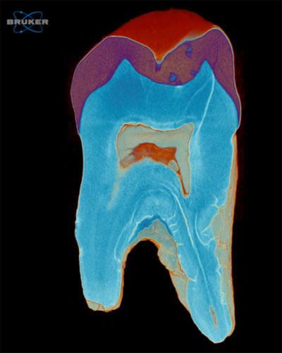 Microtomography Scan of a Tooth
